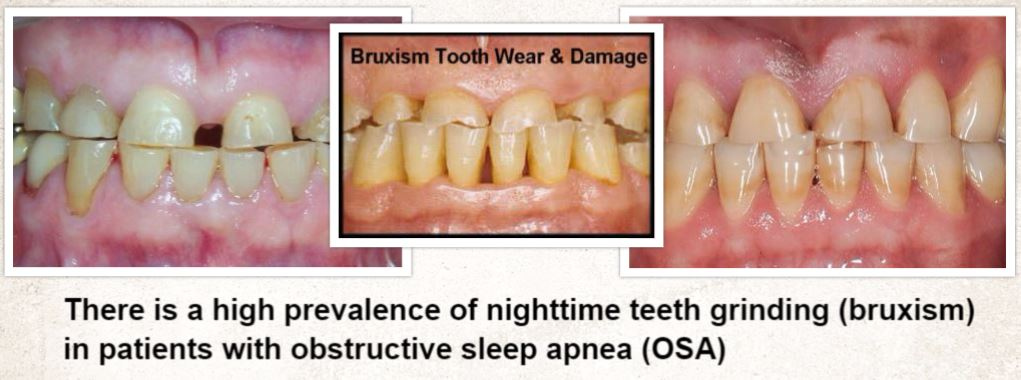 Bruxism Diagnosis and Treatment - Sleep Education