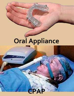 Oral Appliance to treat sleep apnea