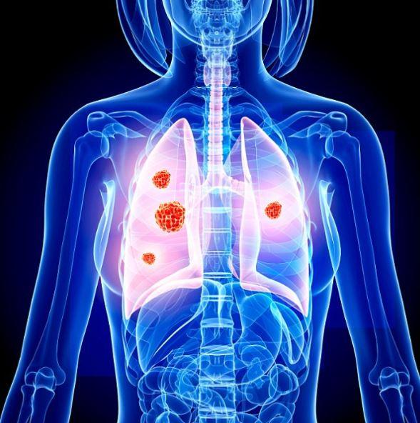 Cancer and Sleep Apnea