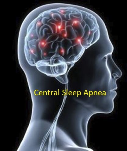 Central Sleep Apnea Natural Treatment