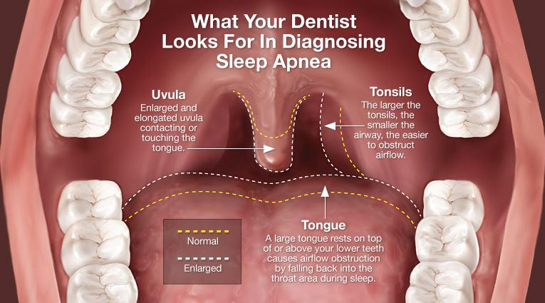 Dentist and Sleep Apnea