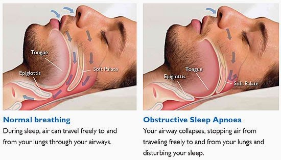 Nugent Sleep Apnea Deer Park Texas