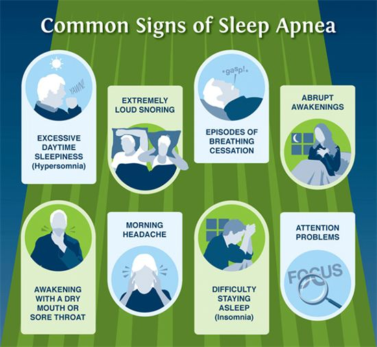 Nugent Sleep Apnea