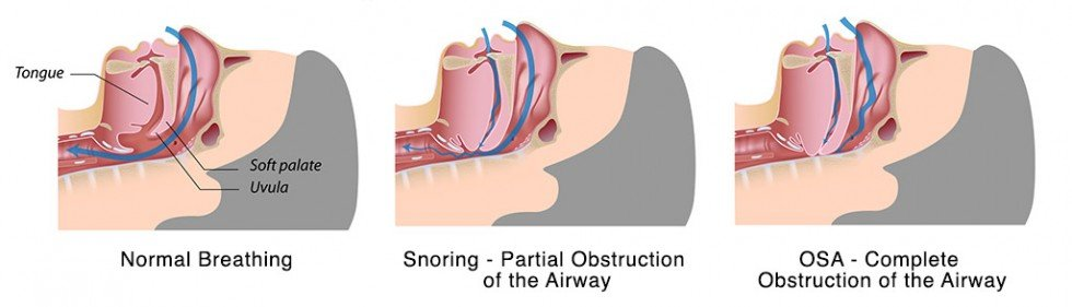 Pasadena Texas Sleep Apnea Doctor