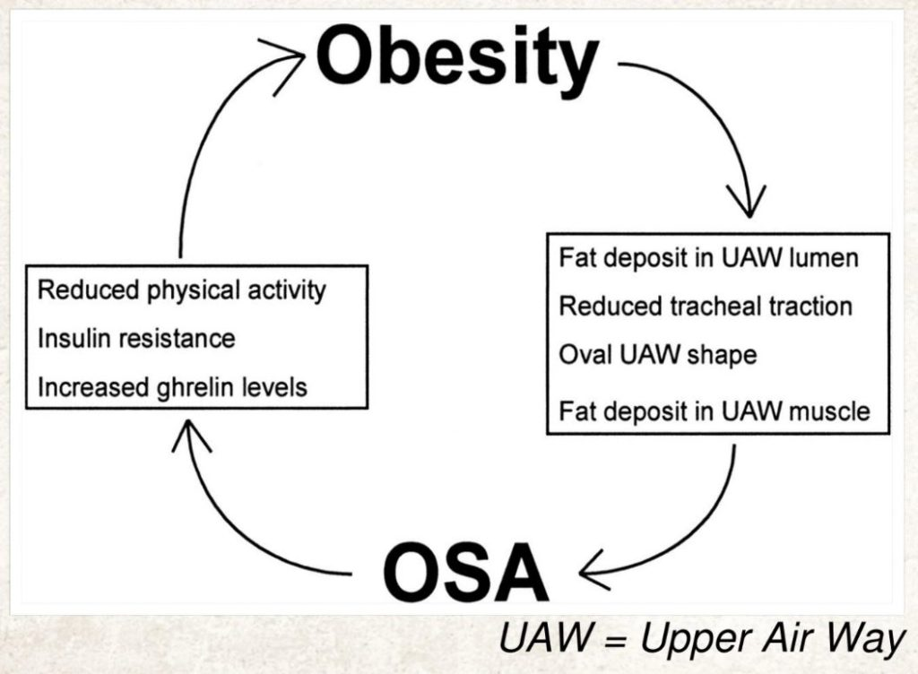 Sleep Apnea and Obesity