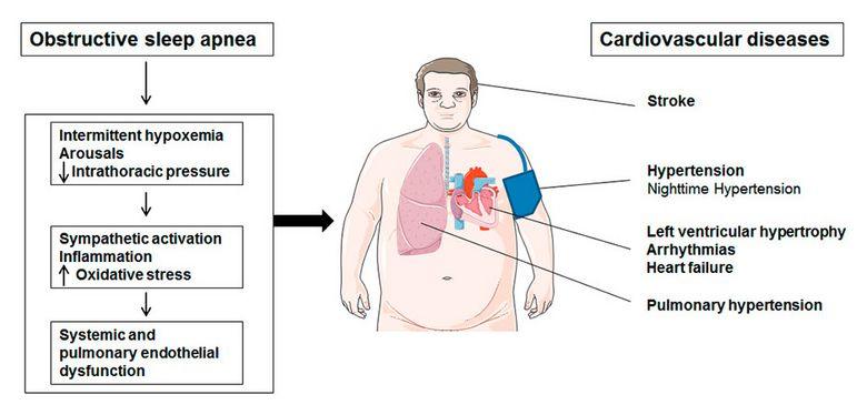 Heart Problems and Obstructive Sleep Apnea