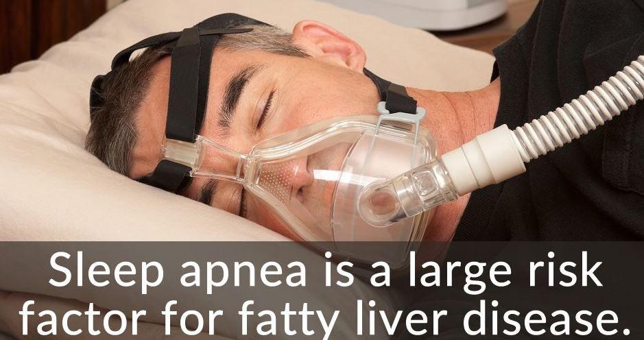 liver and sleep apnea