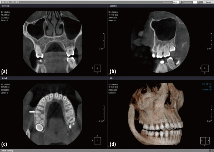 Dental CBCT for Apnea