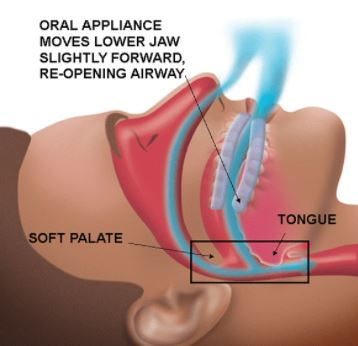 oral appliance nugent