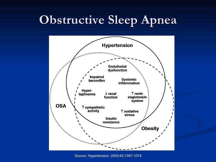 Sleep Apnea and Heart