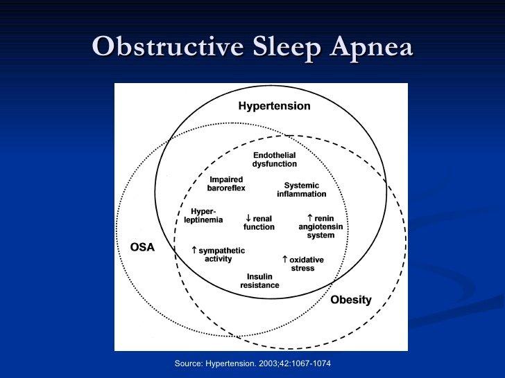 Sleep Apnea and Heart
