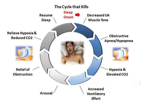 sleep apnea cycle