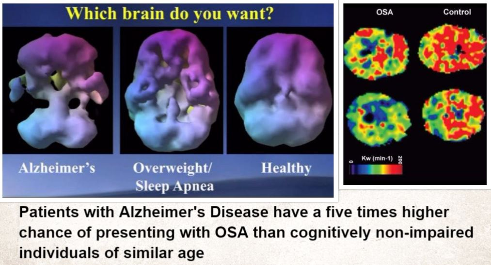 Alzheimers and Apnea